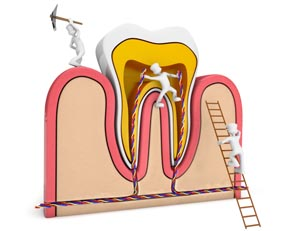 Root Canal from Orgreave Dental in Sheffield