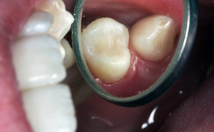 Tooth Coloured Fillings Orgreave Dental Surgery Sheffield