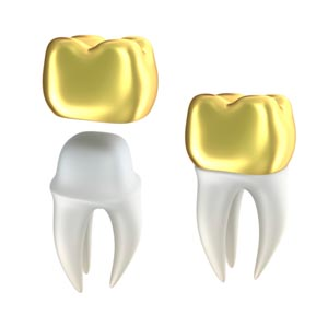 Crowns from Orgreave Dental Surgery in Sheffield