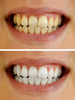 Tooth Whitening at Orgreave Dental in Sheffield
