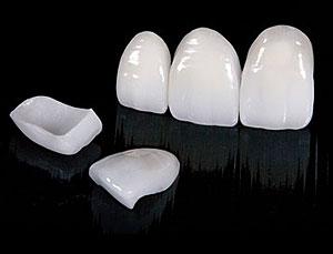 Veneers from Orgreave Dental Surgery in Sheffield