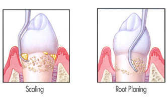 Root Planing at Orgreave Dental Surgery in Sheffield