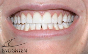 Enlighten Tooth Whitening - Orgreave Dental Surgery Sheffield